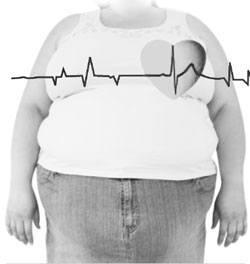 Enfermedades-causadas-por-la-obesidad
