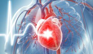 enfermedades-corazon
